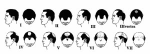 Different Types of Hair line